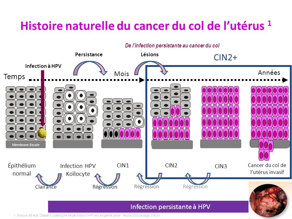 157 1. Moscicki AB et al. Chapter 5:Updating the natural history of HPV and anogenital cancer. Vaccine 2006;24(Suppl.3):42-51. De linfection persistan