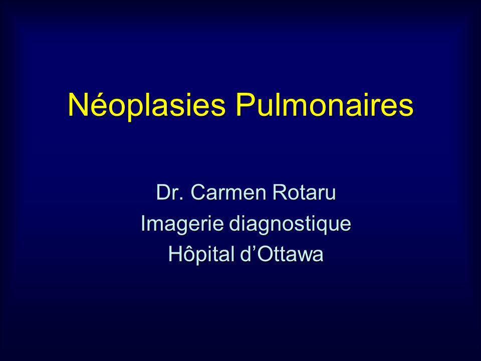 Néoplasies Pulmonaires Dr. Carmen Rotaru Imagerie diagnostique Hôpital dOttawa