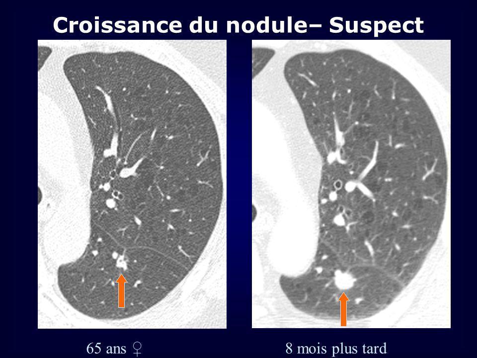 8 mois plus tard 65 ans Croissance du nodule– Suspect