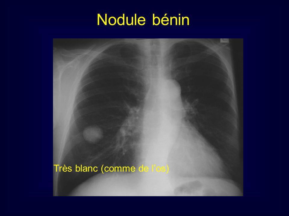 Très blanc (comme de los) Nodule bénin