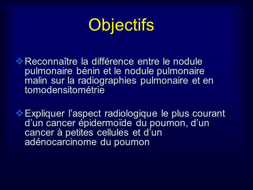 Objectifs Reconnaître la différence entre le nodule pulmonaire bénin et le nodule pulmonaire malin sur la radiographies pulmonaire et en tomodensitomé