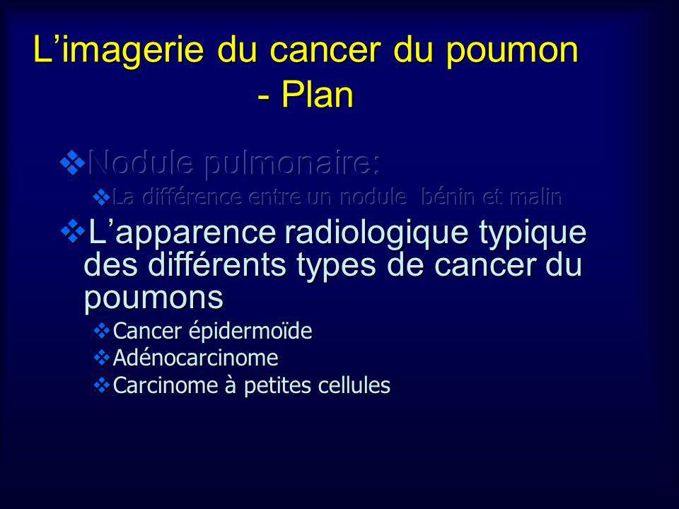 Limagerie du cancer du poumon - Plan
