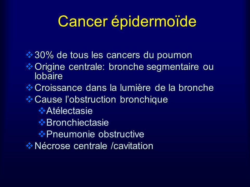 Cancer épidermoïde 30% de tous les cancers du poumon 30% de tous les cancers du poumon Origine centrale: bronche segmentaire ou lobaire Origine centra