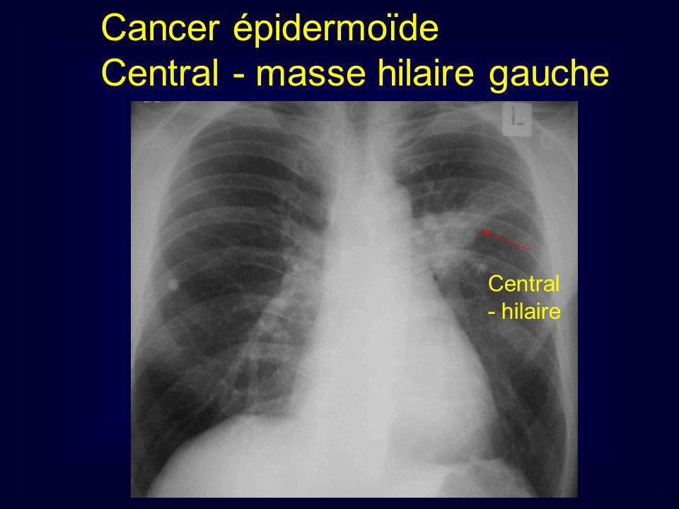 Cancer épidermoïde Central - masse hilaire gauche Central - hilaire
