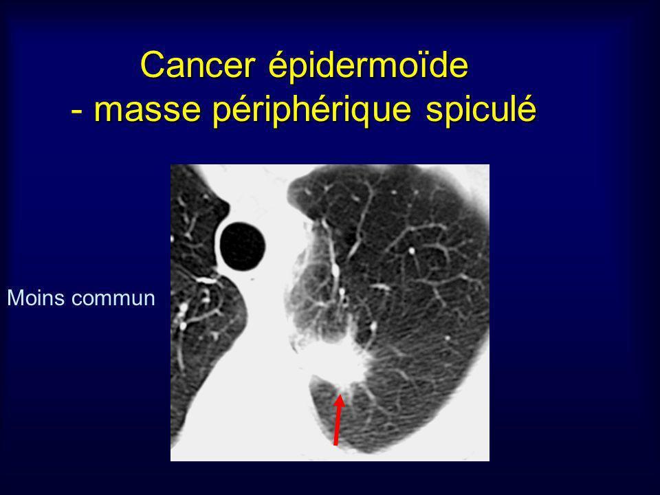 Cancer épidermoïde masse périphérique spiculé Cancer épidermoïde - masse périphérique spiculé Moins commun