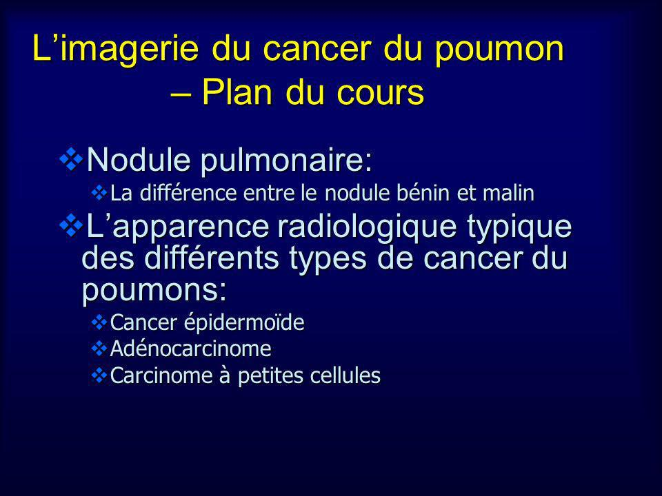 Limagerie du cancer du poumon – Plan du cours Nodule pulmonaire: Nodule pulmonaire: La différence entre le nodule bénin et malin La différence entre l