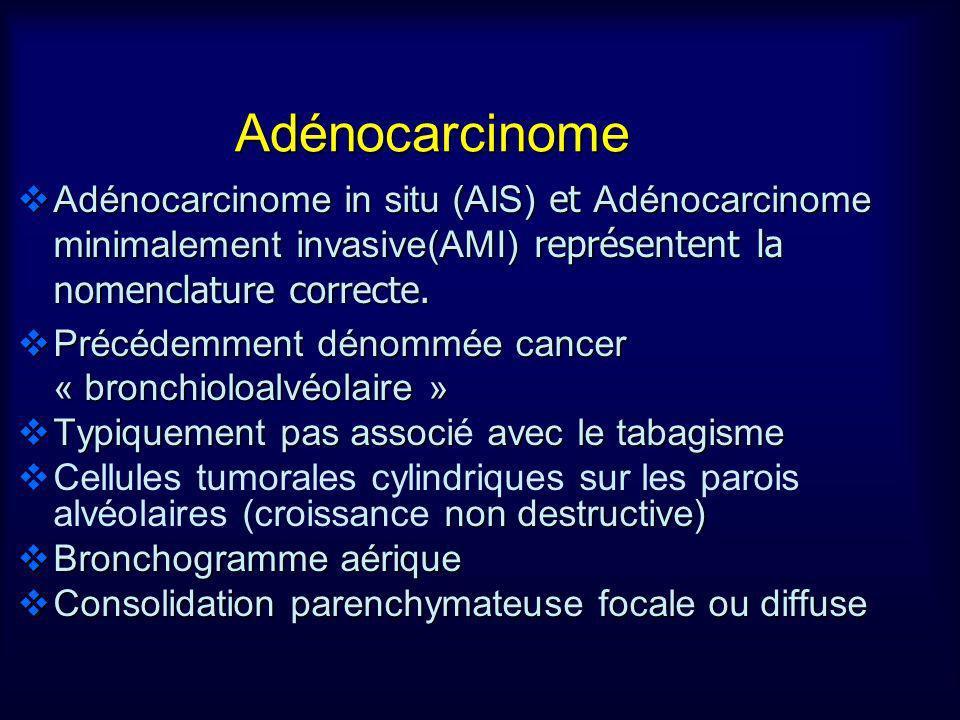 Adénocarcinome in situ (AIS) et Adénocarcinome minimalement invasive(AMI) représentent la nomenclature correcte. Adénocarcinome in situ (AIS) et Adéno