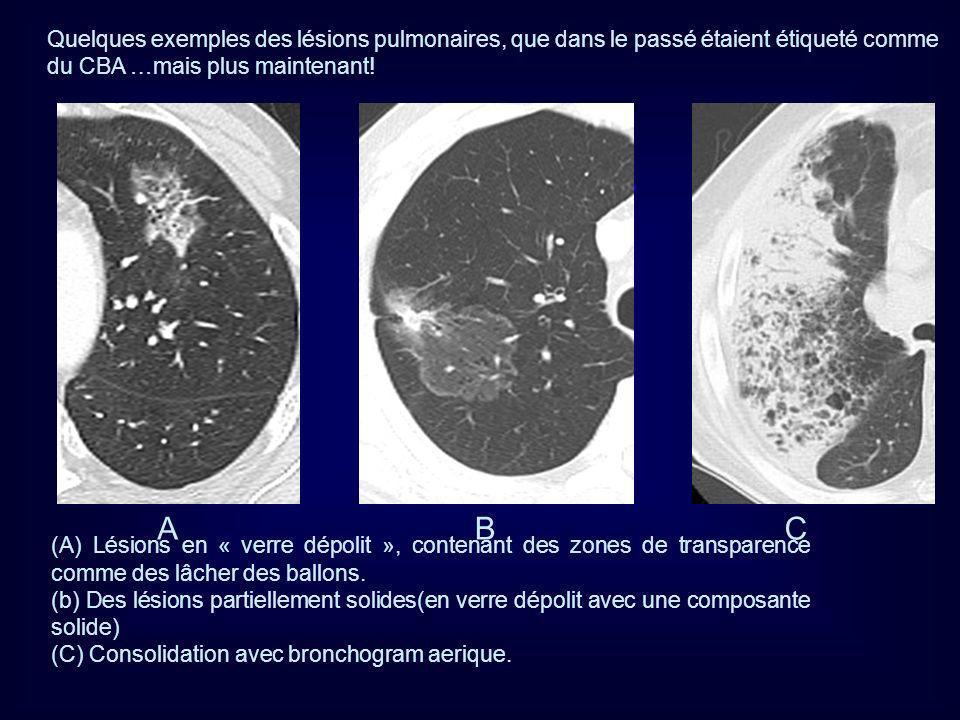 (A) Lésions en « verre dépolit », contenant des zones de transparence comme des lâcher des ballons. (b) Des lésions partiellement solides(en verre dép