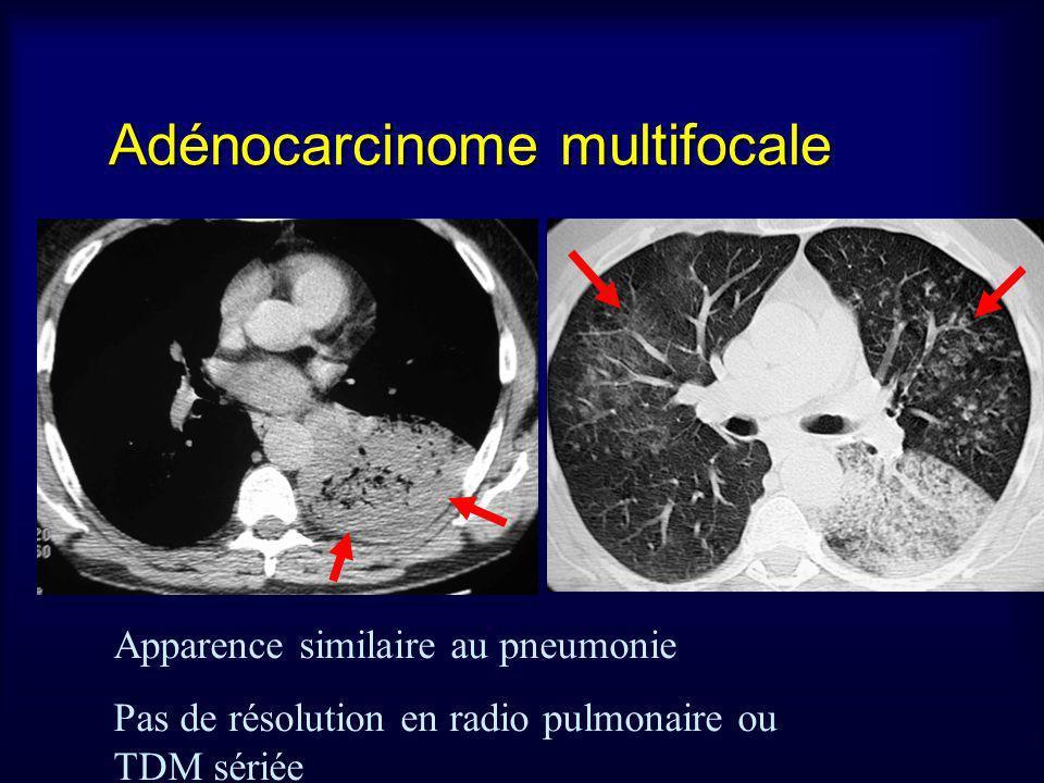 Adénocarcinome multifocale Apparence similaire au pneumonie Pas de résolution en radio pulmonaire ou TDM sériée