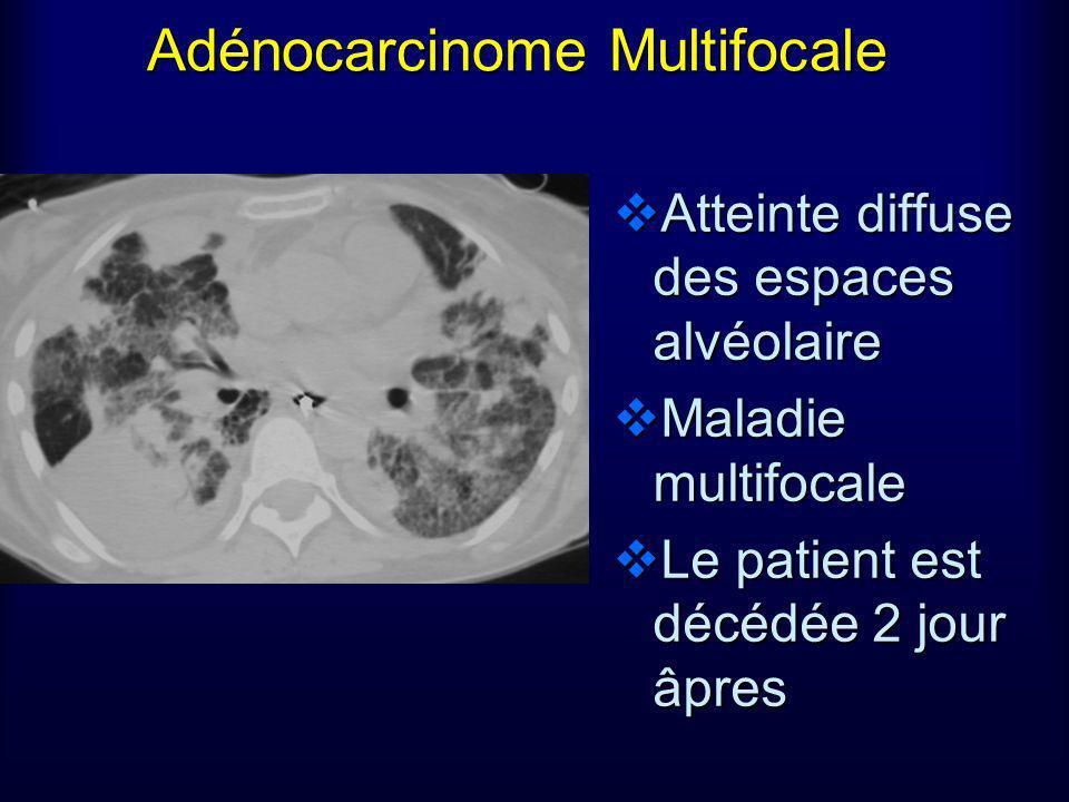 Adénocarcinome Multifocale Atteinte diffuse des espaces alvéolaire Maladie multifocale Le patient est décédée 2 jour âpres