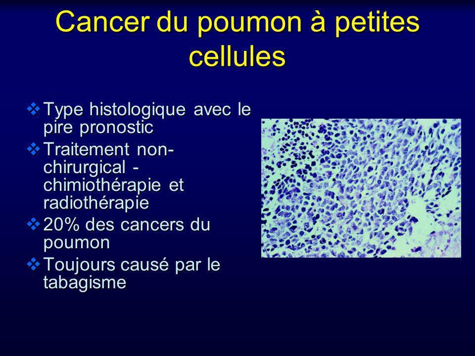 Cancer du poumon à petites cellules Type histologique avec le pire pronostic Type histologique avec le pire pronostic Traitement non- chirurgical - ch