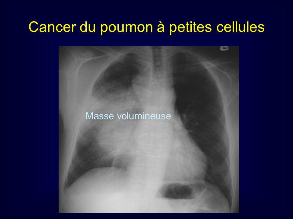 Masse volumineuse Cancer du poumon à petites cellules