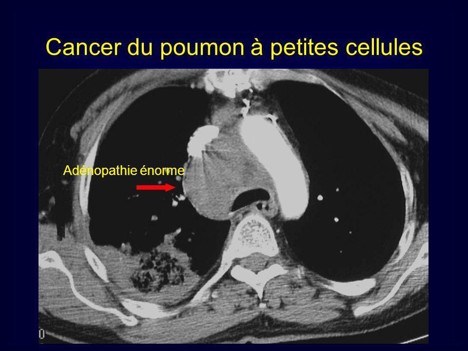 Adénopathie énorme Cancer du poumon à petites cellules