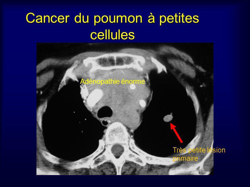 Cancer du poumon à petites cellules Adénopathie énorme Très petite lésion primaire