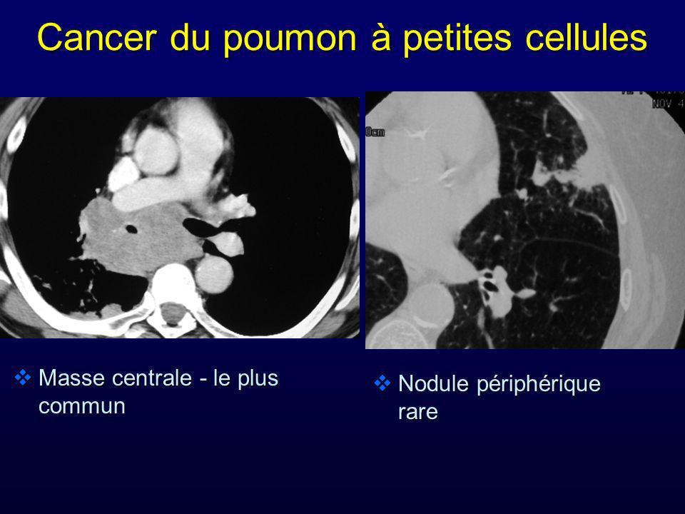 Masse centrale - le plus commun Nodule périphérique rare Nodule périphérique rare Cancer du poumon à petites cellules