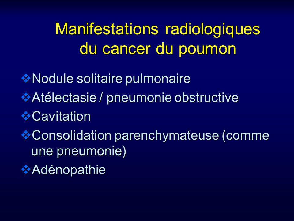 Manifestations radiologiques du cancer du poumon Nodule solitaire pulmonaire Nodule solitaire pulmonaire Atélectasie / pneumonie obstructive Atélectas