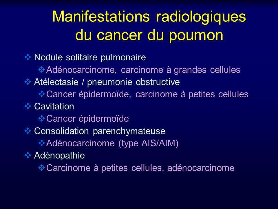 Manifestations radiologiques du cancer du poumon Nodule solitaire pulmonaire Nodule solitaire pulmonaire Adénocarcinome, carcinome à grandes cellules
