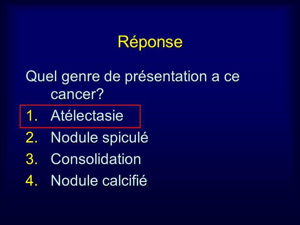 Réponse Quel genre de présentation a ce cancer? 1.Atélectasie 2.Nodule spiculé 3.Consolidation 4.Nodule calcifié