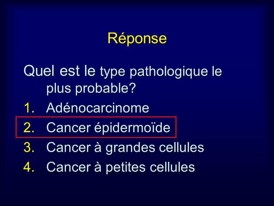 Réponse Quel est le type pathologique le plus probable? 1.Adénocarcinome 2.Cancer épidermoïde 3.Cancer à grandes cellules 4.Cancer à petites cellules