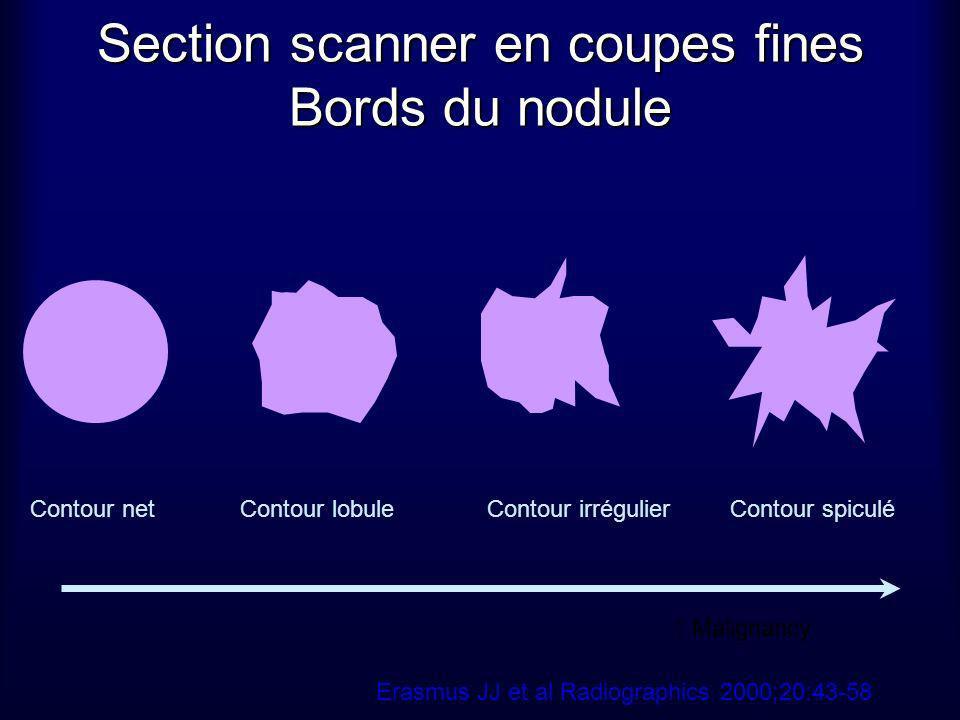 Section scanner en coupes fines Bords du nodule Contour netContour lobuleContour irrégulierContour spiculé Erasmus JJ et al Radiographics 2000;20:43-5