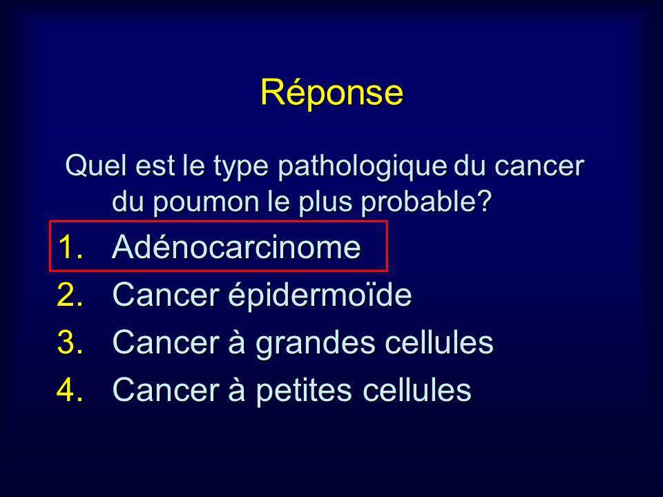 Réponse Quel est le type pathologique du cancer du poumon le plus probable? Quel est le type pathologique du cancer du poumon le plus probable? 1.Adén