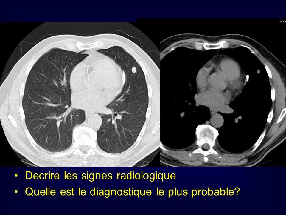 Decrire les signes radiologique Quelle est le diagnostique le plus probable?