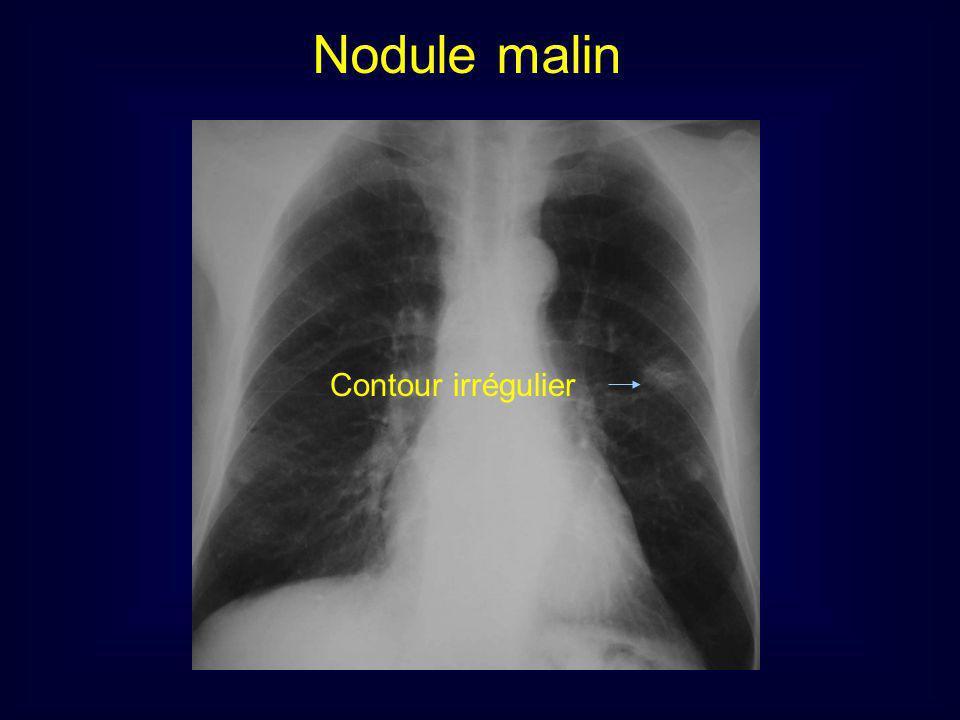Nodule pulmonaire pas le mamelon En rouge opacités des mamelons