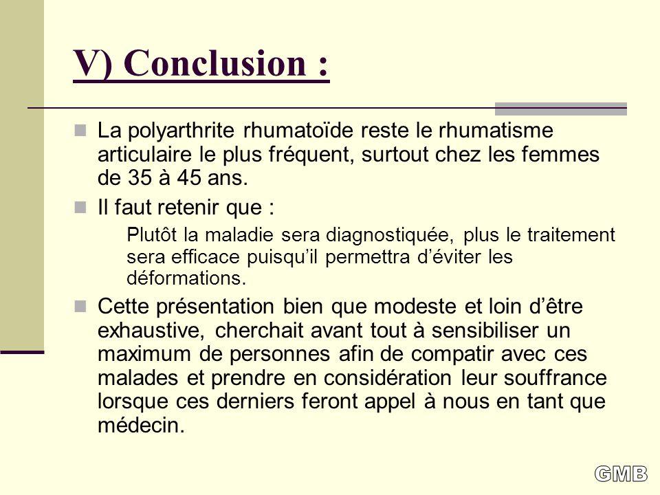 V) Conclusion : La polyarthrite rhumatoïde reste le rhumatisme articulaire le plus fréquent, surtout chez les femmes de 35 à 45 ans.