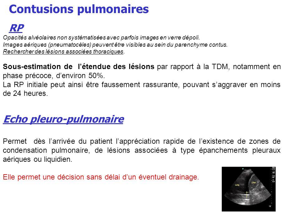 Contusions pulmonaires RP Opacités alvéolaires non systématisées avec parfois images en verre dépoli. Images aériques (pneumatocèles) peuvent être vis