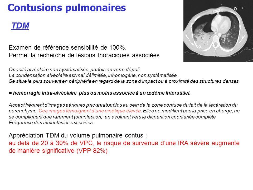 Contusions pulmonaires Examen de référence sensibilité de 100%. Permet la recherche de lésions thoraciques associées Opacité alvéolaire non systématis