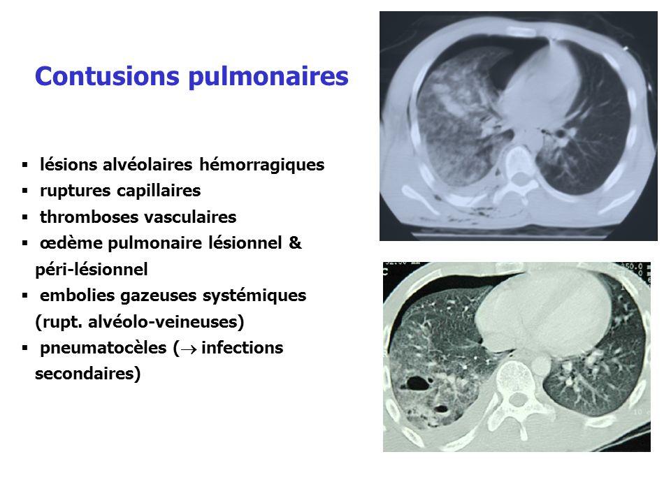 lésions alvéolaires hémorragiques ruptures capillaires thromboses vasculaires œdème pulmonaire lésionnel & péri-lésionnel embolies gazeuses systémique