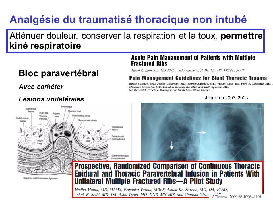 Analgésie du traumatisé thoracique non intubé Atténuer douleur, conserver la respiration et la toux, permettre kiné respiratoire Bloc paravertébral Av