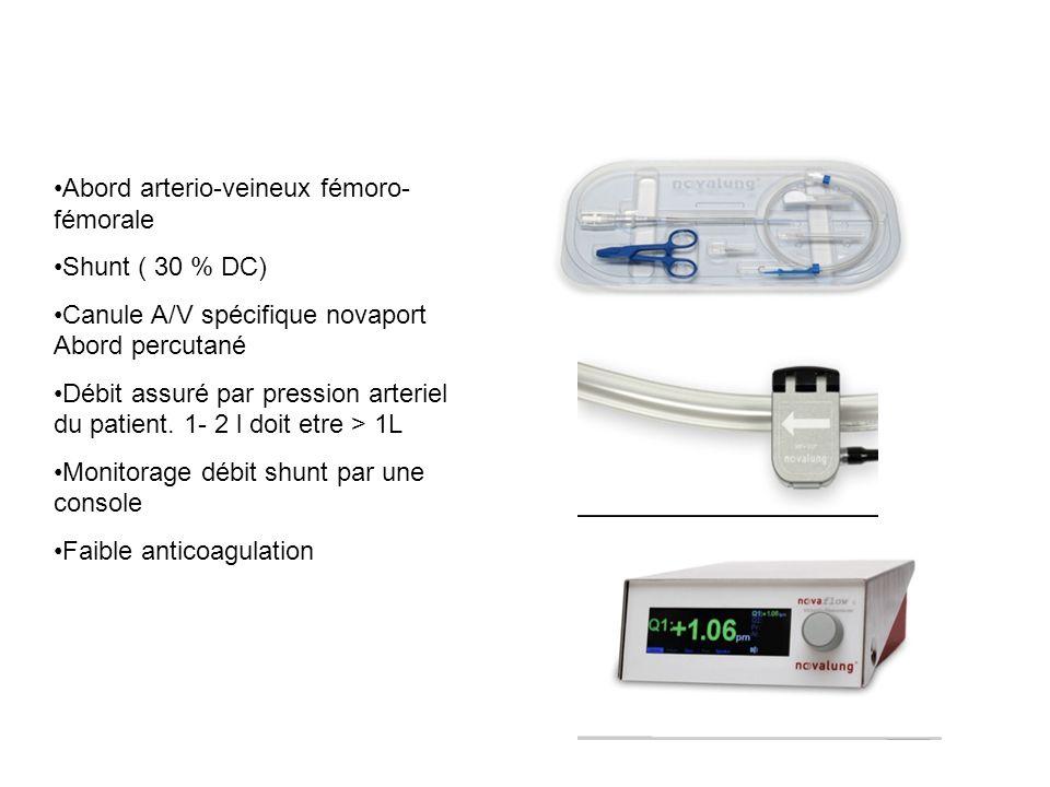 Abord arterio-veineux fémoro- fémorale Shunt ( 30 % DC) Canule A/V spécifique novaport Abord percutané Débit assuré par pression arteriel du patient.
