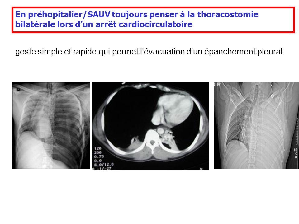 En préhopitalier/SAUV toujours penser à la thoracostomie bilatérale lors dun arrêt cardiocirculatoire geste simple et rapide qui permet lévacuation du