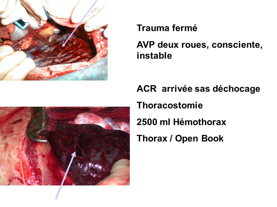 Trauma fermé AVP deux roues, consciente, instable ACR arrivée sas déchocage Thoracostomie 2500 ml Hémothorax Thorax / Open Book