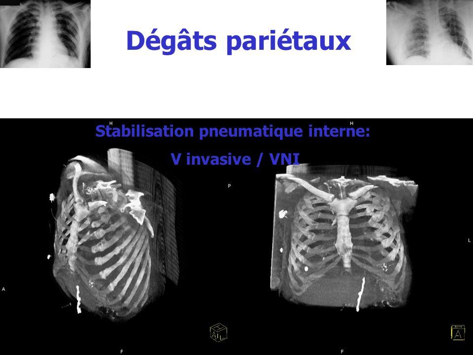 Dégâts pariétaux Stabilisation pneumatique interne: V invasive / VNI