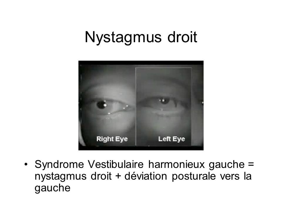 Nystagmus droit Syndrome Vestibulaire harmonieux gauche = nystagmus droit + déviation posturale vers la gauche