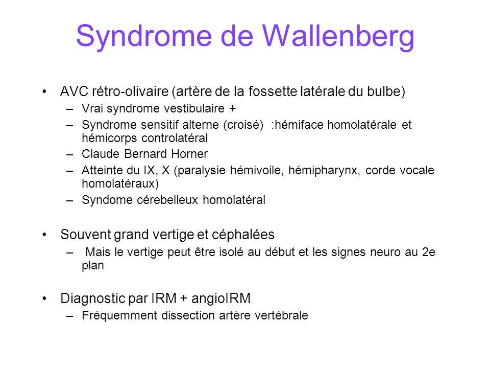 Syndrome de Wallenberg AVC rétro-olivaire (artère de la fossette latérale du bulbe) –Vrai syndrome vestibulaire + –Syndrome sensitif alterne (croisé) :hémiface homolatérale et hémicorps controlatéral –Claude Bernard Horner –Atteinte du IX, X (paralysie hémivoile, hémipharynx, corde vocale homolatéraux) –Syndome cérebelleux homolatéral Souvent grand vertige et céphalées – Mais le vertige peut être isolé au début et les signes neuro au 2e plan Diagnostic par IRM + angioIRM –Fréquemment dissection artère vertébrale