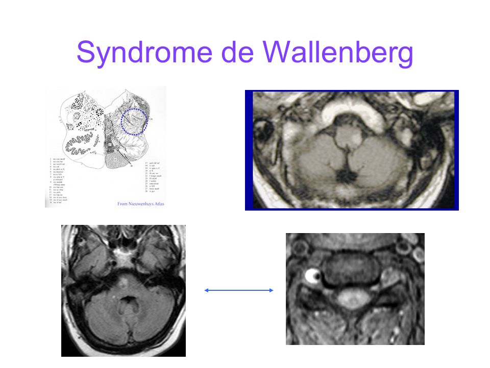 Syndrome de Wallenberg