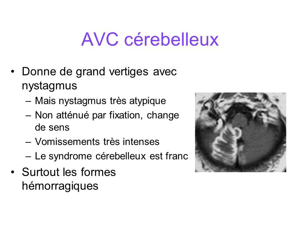 AVC cérebelleux Donne de grand vertiges avec nystagmus –Mais nystagmus très atypique –Non atténué par fixation, change de sens –Vomissements très intenses –Le syndrome cérebelleux est franc Surtout les formes hémorragiques