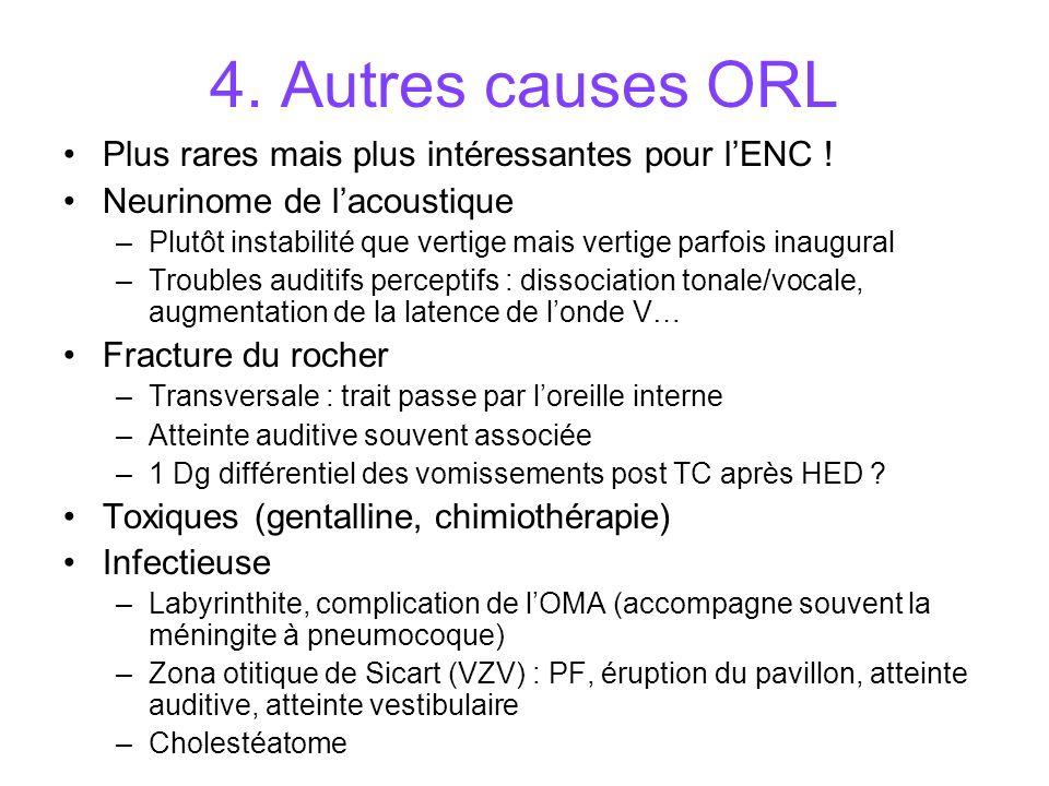 4.Autres causes ORL Plus rares mais plus intéressantes pour lENC .