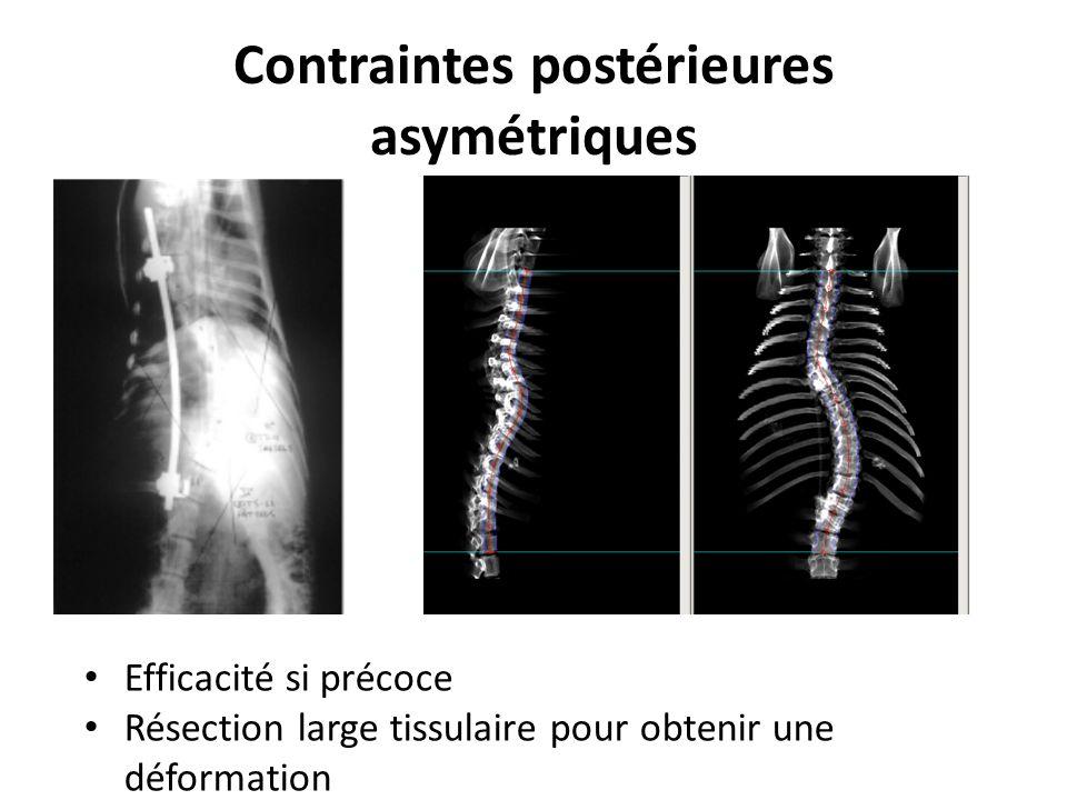 Contraintes postérieures asymétriques Efficacité si précoce Résection large tissulaire pour obtenir une déformation
