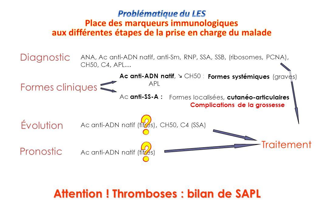 CH50 (ou ) si Ac anti-ADN natif si atteinte rénale (+++) Exploration du complément C3c (ou ) C4 ou Ac anti- Fréquence Spécificité DNA natif 70-95% Sm (U1 Sn)RNP 20-40% Caucasiens5-10% Noirs (US)20-30% SSA 20-70% (Grossesse ) PCNA 3% SSB 10-50% Ku 2-10% Phospholipides .