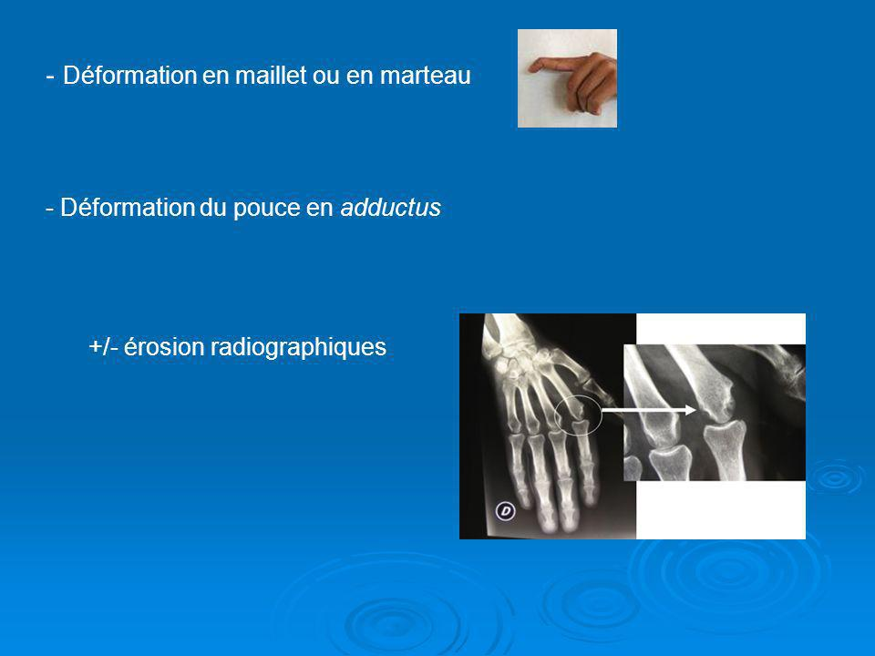 - Déformation en maillet ou en marteau - Déformation du pouce en adductus +/- érosion radiographiques