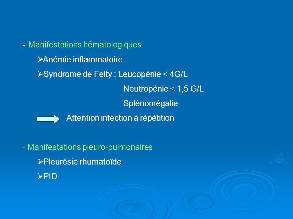 - Manifestations hématologiques Anémie inflammatoire Syndrome de Felty : Leucopénie < 4G/L Neutropénie < 1,5 G/L Splénomégalie Attention infection à r