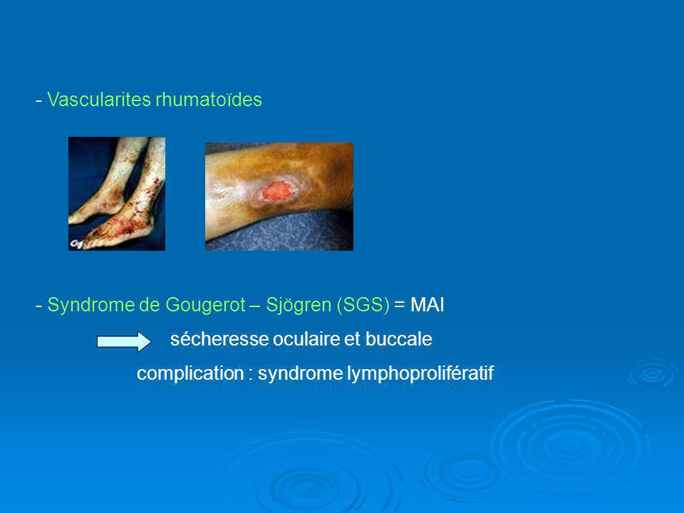 - Vascularites rhumatoïdes - Syndrome de Gougerot – Sjögren (SGS) = MAI sécheresse oculaire et buccale complication : syndrome lymphoprolifératif
