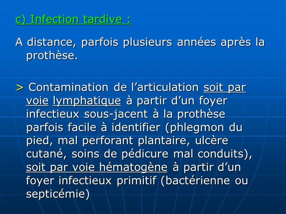 c) Infection tardive : A distance, parfois plusieurs années après la prothèse. > Contamination de larticulation soit par voie lymphatique à partir dun