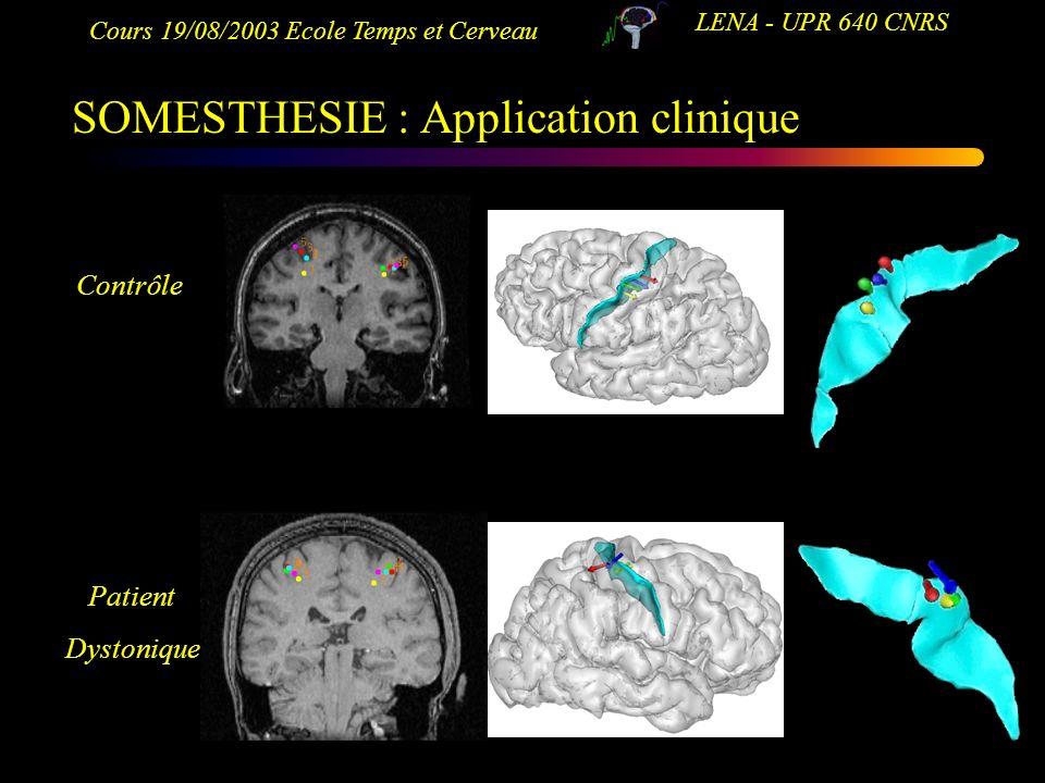 Cours 19/08/2003 Ecole Temps et Cerveau LENA - UPR 640 CNRS SOMESTHESIE : Application clinique Contrôle Patient Dystonique