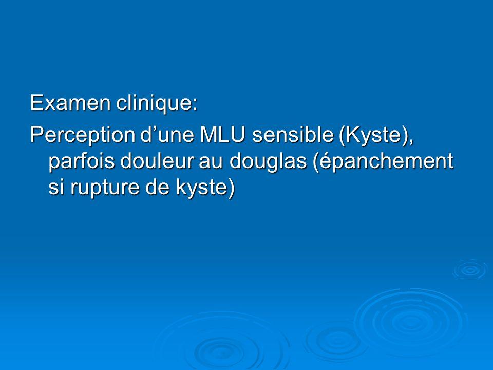 Examen clinique: Perception dune MLU sensible (Kyste), parfois douleur au douglas (épanchement si rupture de kyste)