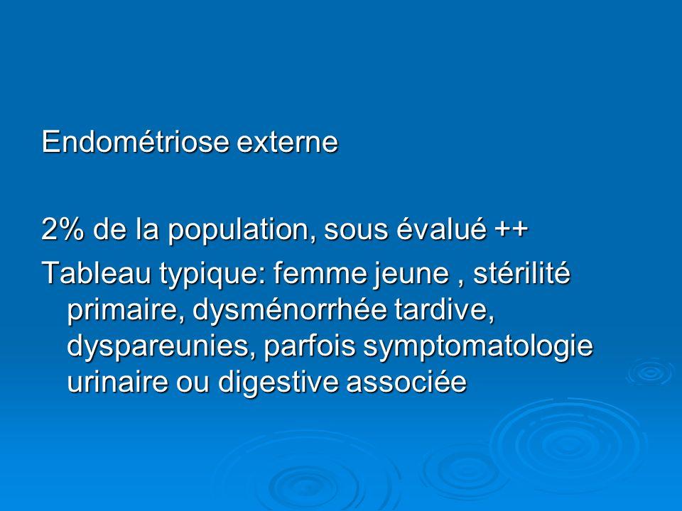 Endométriose externe 2% de la population, sous évalué ++ Tableau typique: femme jeune, stérilité primaire, dysménorrhée tardive, dyspareunies, parfois